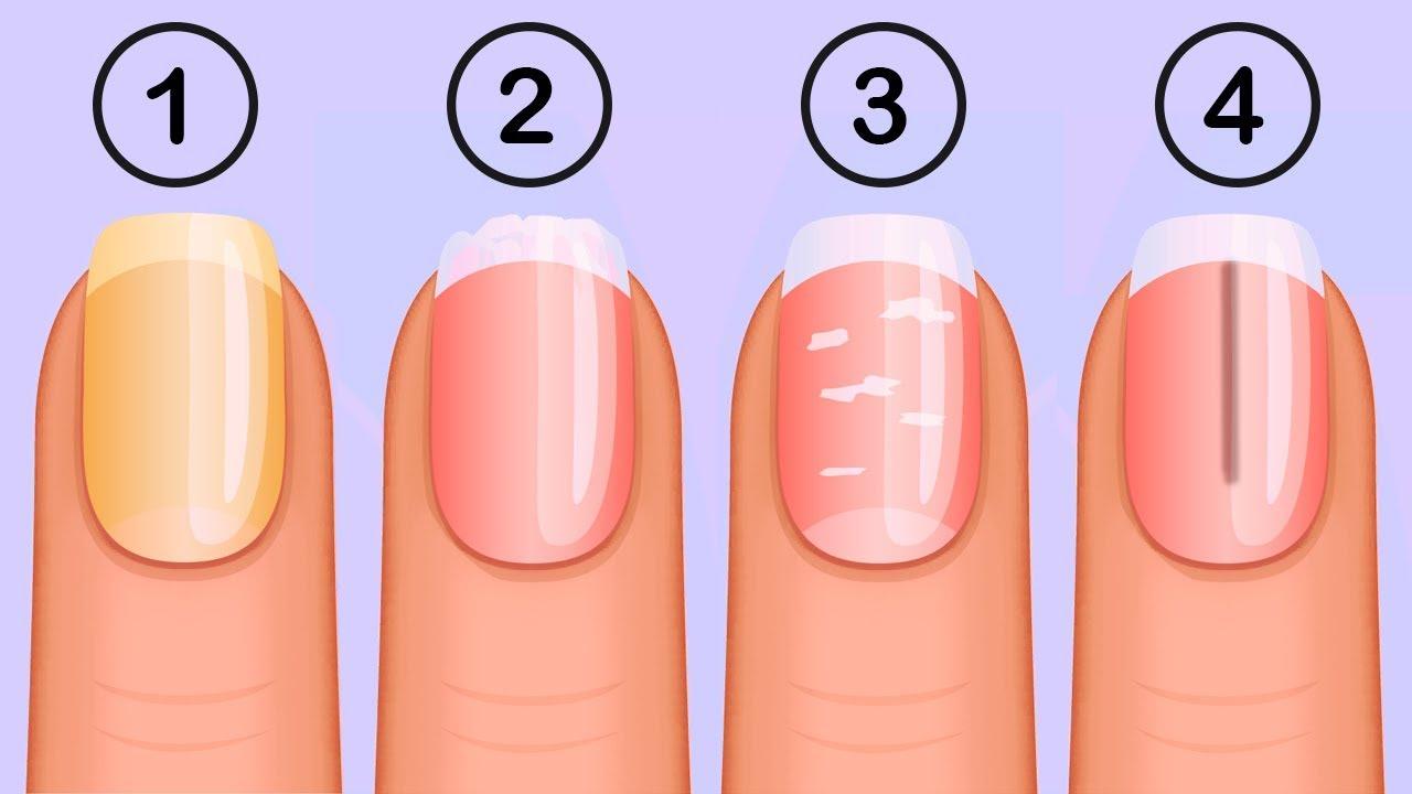 Ce que vos ongles disent de votre santé